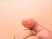 Thumb cut wound Royalty Free Stock Photography