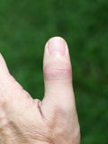 Thumb finger joint get sudden, intense pain in a night like gout Royalty Free Stock Image