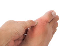 Thumb pressing against the swollen gout inflamed foot. Stock Photography