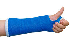 Thumb up. Broken arm with thumb up, isolated on white background Stock Photography