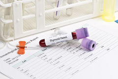Thyroid Panel Lab Test. Thyroid test panel blood analysis collection tube with blood collection supplies stock images