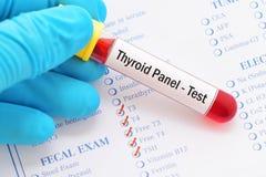 Free Thyroid Panel Test Royalty Free Stock Photos - 101272648