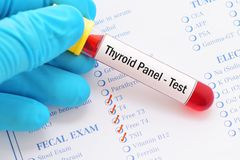 Thyroid panel test. Blood sample for thyroid panel test royalty free stock photos