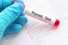 Thyroid panel test Royalty Free Stock Photography