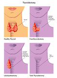 Thyroidectomy Royalty Free Stock Images