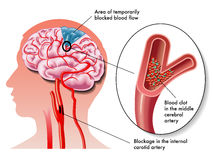 TIA (transient ischemic attack) royalty free illustration
