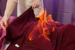 Tibetan brännhet massage Traditionell tibetan medicin, brandtillvägagångssätt och kroppomsorg royaltyfri bild