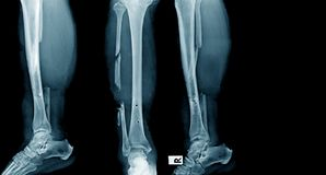 Tibia fracture. Fracture of tibia and fibular bone Stock Images