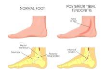 Tibial tendonitis för medial ankelinjury_Posterior vektor illustrationer