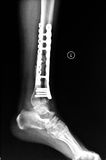 Tibiofibula留下侧向位置X-射线图片 库存照片