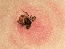Tick bite. Tick with its head sticking in human skin, red blotches indicate an infection Royalty Free Stock Photo