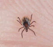Tick crawling on human skin. Extreme close-up with high magnification royalty free stock images