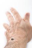 Tick sucked blood on human skin Stock Photos