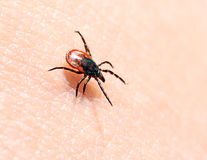 Ticks ��on human skin. Royalty Free Stock Photos
