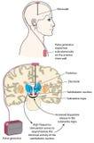 Tiefe Gehirnanregung lizenzfreie abbildung