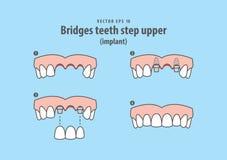 Tiende un puente sobre vector superior del ejemplo del implante del paso de los dientes en b azul libre illustration