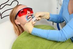 Tijdens het proces van tanden het witten royalty-vrije stock foto
