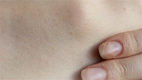 Tik die op menselijke huid kruipt stock videobeelden