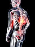 Tillbaka anatomi - smärta Royaltyfri Bild