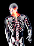 Tillbaka anatomi - smärta Arkivbilder
