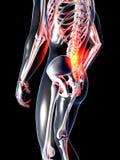 Tillbaka anatomi - smärta Royaltyfri Fotografi