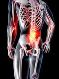 Tillbaka anatomi - smärta Arkivfoto