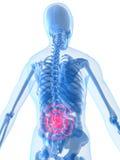tillbaka inflammation fäller ned vektor illustrationer