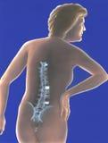 Tillbaka rygg - smärta fotografering för bildbyråer