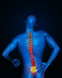 Tillbaka smärta ledning Arkivbild