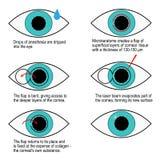 Tillvägagångssätt av laser-korrigeringen av vision stegvis Infographics Arkivfoto
