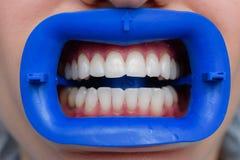 Tillvägagångssätt för att jämföra färgskuggorna av tänder med prov, når att ha blekt Royaltyfria Foton