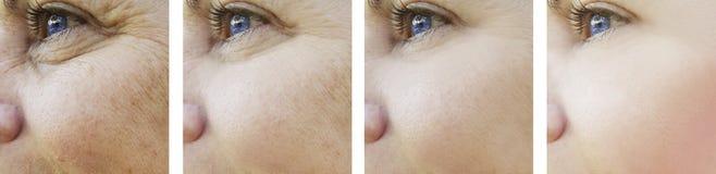Tillvägagångssätt för collage för regenerering för kvinnaögonskrynklor före och efter royaltyfria bilder