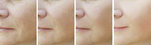 Tillvägagångssätt för collage för regenerering för kvinnaskrynklor före och efter royaltyfria foton