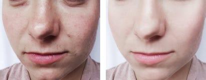 tillvägagångssätt för cosmetology för borttagning för ögon för flickaskönhetskrynklor före och efter arkivbilder