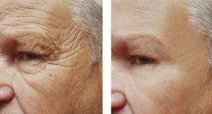 Tillvägagångssätt för framsida för terapi för skrynklor för panna för äldre man för framsida tålmodiga före och efter arkivfoto