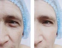 Tillvägagångssätt för manskrynklor före och efter royaltyfria foton
