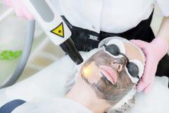 Tillvägagångssätt för skalning för närbildkolframsida Laser pulserar fullständigt hud av framsidan Maskinvarucosmetologybehandlin arkivbild