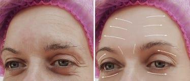 Tillvägagångssätt för skillnad för kvinnlig ansikts- skrynklabehandling mogna kosmetiska före och efter, pil arkivfoto
