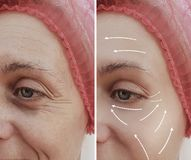 Tillvägagångssätt för skillnad för kvinnlig ansikts- skrynklabehandling mogna tålmodiga kosmetiska före och efter, pil royaltyfria foton
