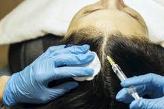 Tillvägagångssättet för att behandla hår från att falla ut vid injektionen T royaltyfria bilder