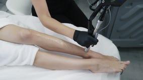 Tillvägagångssättet för laser-hårborttagning i skönhetklinik, stänger sig upp kvinnaben under epilationen, ultrarapid stock video