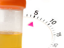 Timed urine sample test. On white background Stock Photography