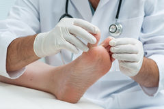 Tinia pedis or Athletes foot. Doctor dermatologist examines the foot on the presence of athletes foot royalty free stock photos