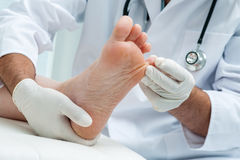 Tinia pedis or Athletes foot. Doctor dermatologist examines the foot on the presence of athletes foot stock image