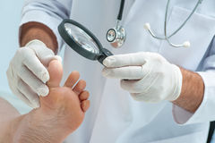 Tinia pedis or Athletes foot. Doctor dermatologist examines the foot on the presence of athletes foot stock photo