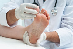 Tinia pedis or Athletes foot. Doctor dermatologist examines the foot on the presence of athletes foot royalty free stock photography