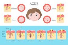 Tipi dell'acne e infographics di formazione, illustrazione piana di vettore illustrazione vettoriale