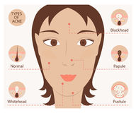 Tipi di acne e di brufoli Fotografia Stock Libera da Diritti
