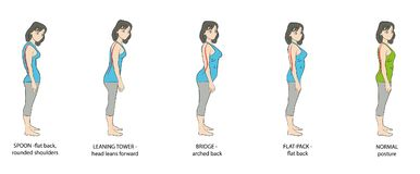 Tipi di donne di posizione Illustrazione di vettore royalty illustrazione gratis