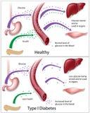 Tipo - 1 diabetes ilustração do vetor